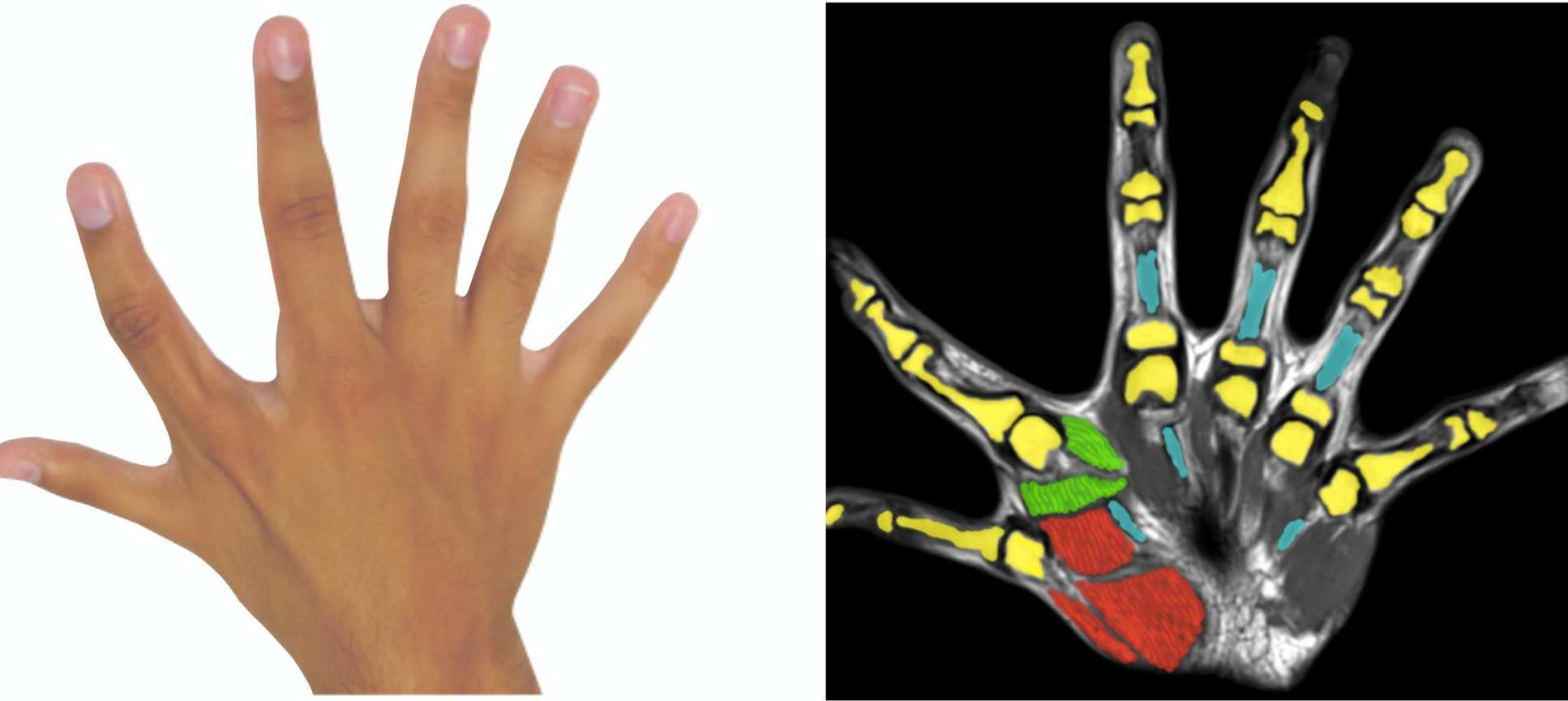 Photo of hand next to its corresponding fMRI image. The extra finger is located between the forefinger and thumb.