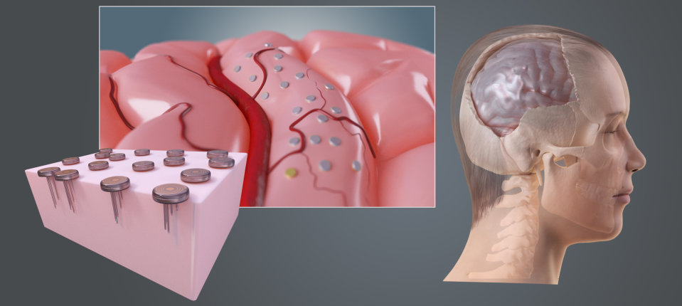 ENGINI - Implant Concept