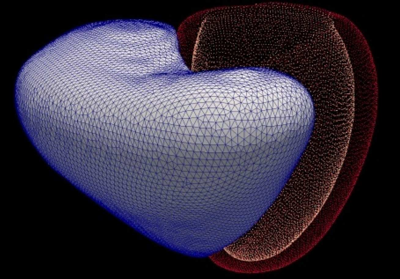 Computer software creates a 3D virtual heart from MRI scans, then learns to predict when patients will die