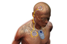 Implantable Brain Machine Interface Concept for an End-to-End System (NGNI/iPROBE projects)