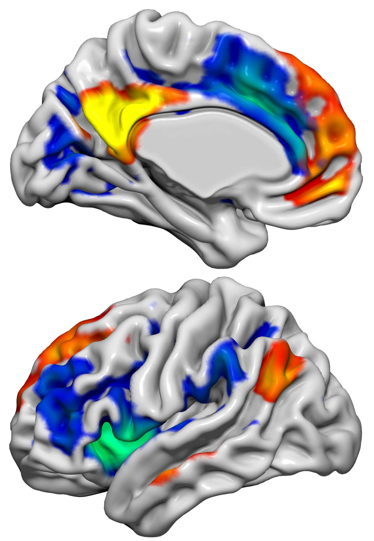 This image shows the Default Mode Network (red/yellow) and the Salience Network (blue/green) which have important roles in social and emotional function. These two networks in the brain were altered when the volunteers received the hormone kisspeptin, and this was associated with changes in brain activity linked to sexual aversion and sexual arousal.