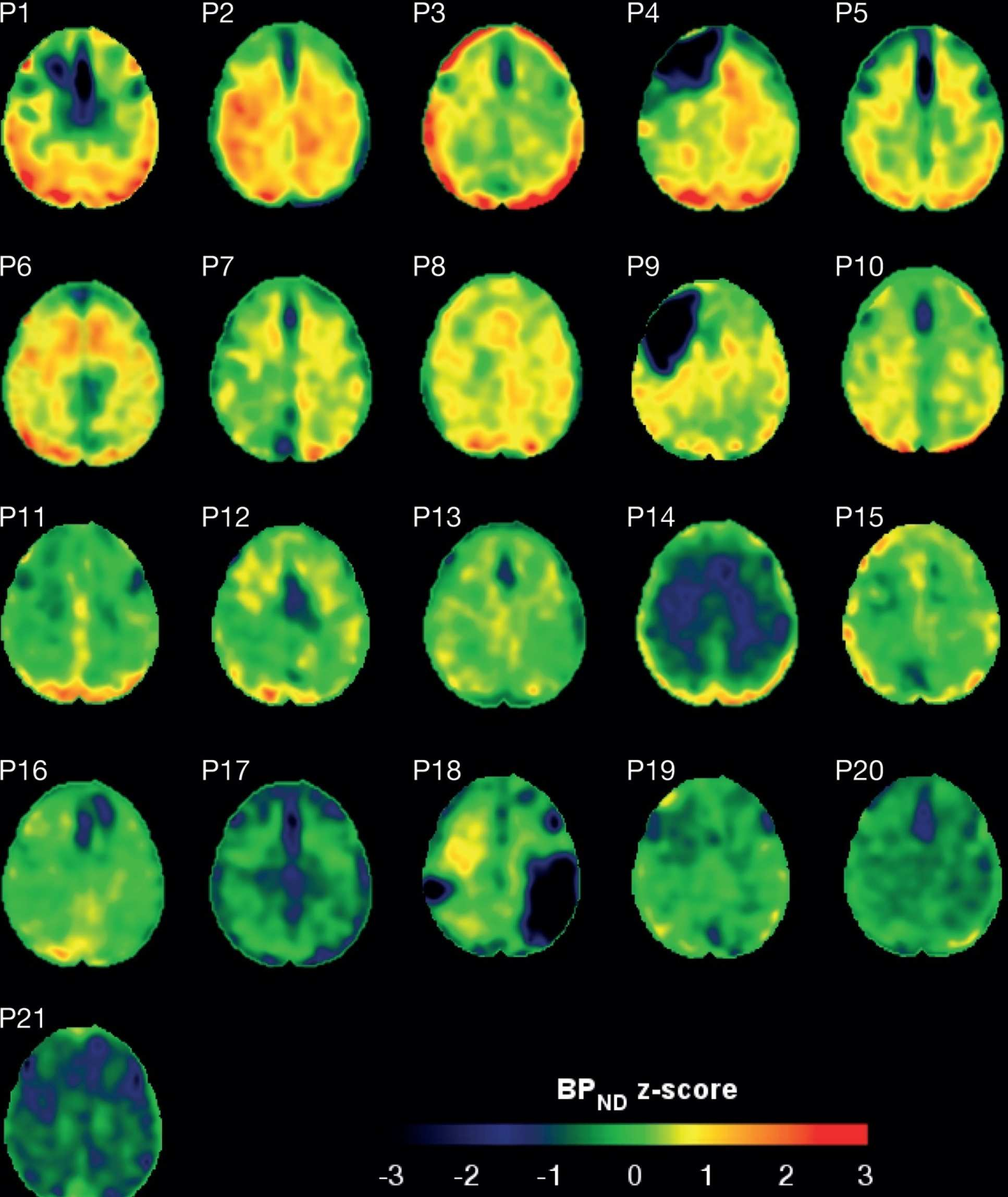 These scans show the amount of tau protein in the brains of patients who have suffered a traumatic brain injury. Red represents increased tau accumulation