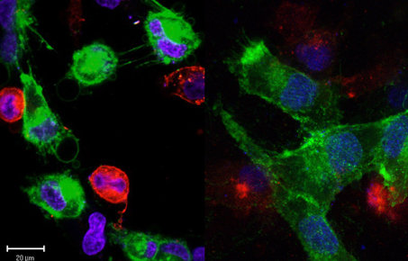 Confocal images of CAFs and PCa cells