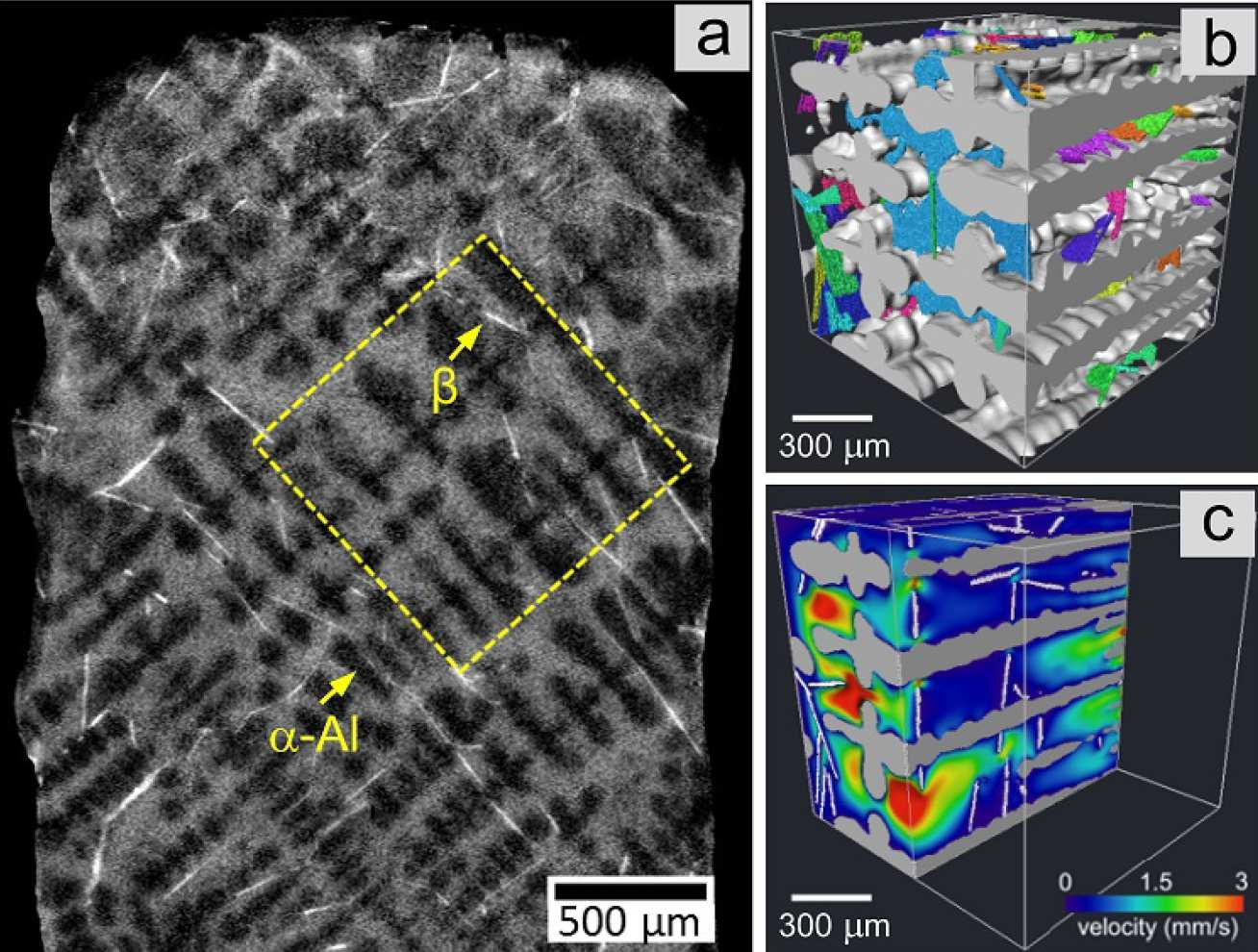 (a) Al-Si-Cu-Fe solidifying microstructure; (b) intermetallics (coloured) and dendrites (light grey) rendered in 3D from an ROI [yellow square in (a)]; (c) CFD simulated velocity field showing how intermetallics block liquid flow.