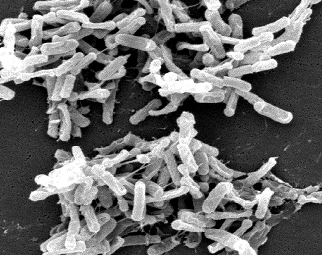 An electron micrograph of C. diff