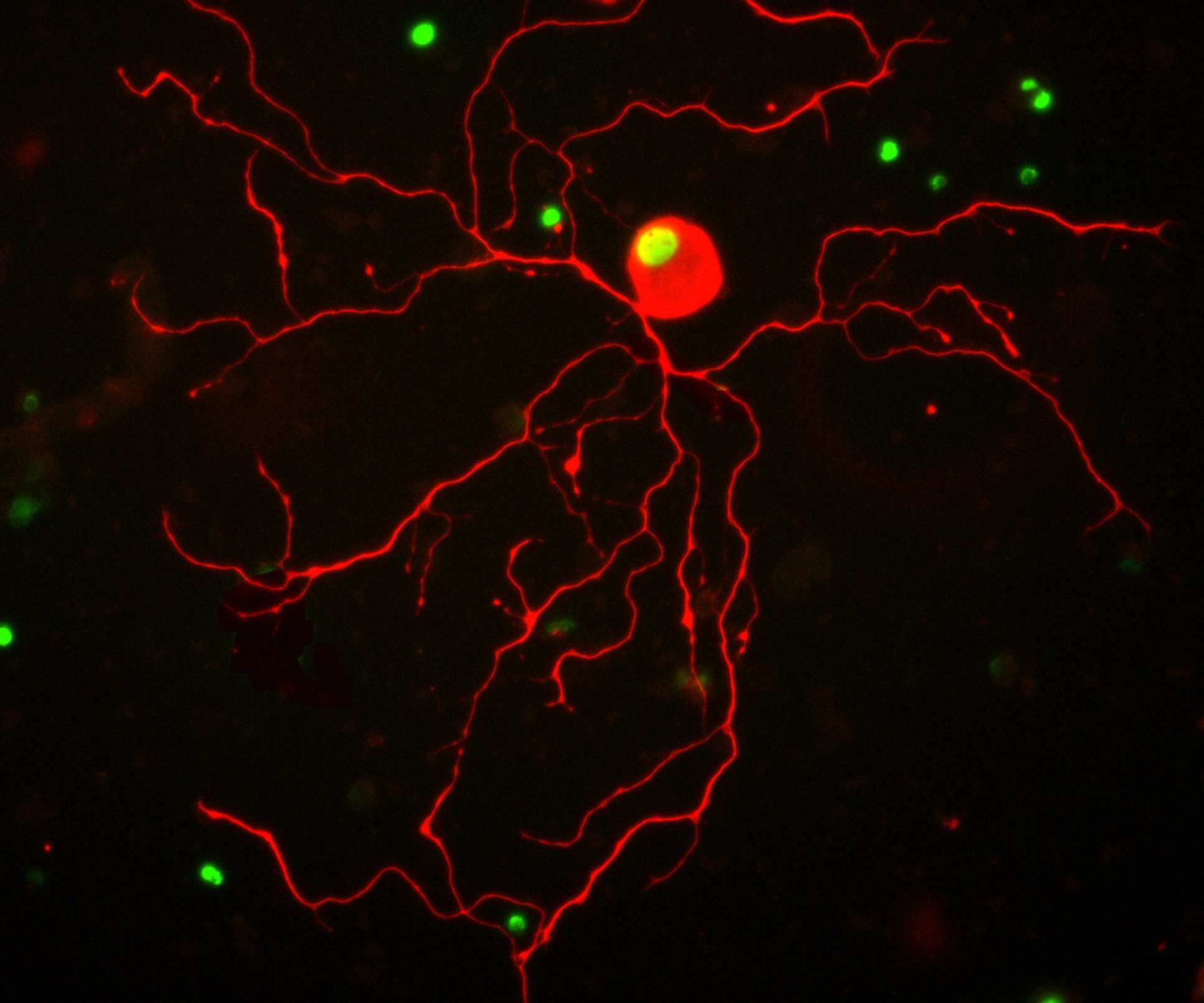 Image of a nerve cell branching out, stained with fluorescent markers