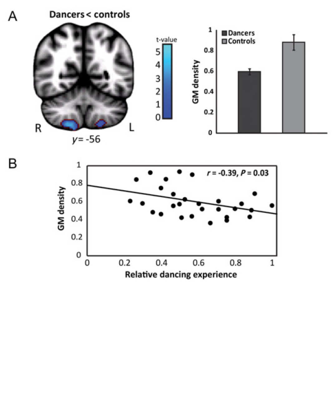 A - Adaptation in the Cerebellar Grey matter mediates dizziness suppression in ballet dancers. B - The adaptation scales with ballet experience.