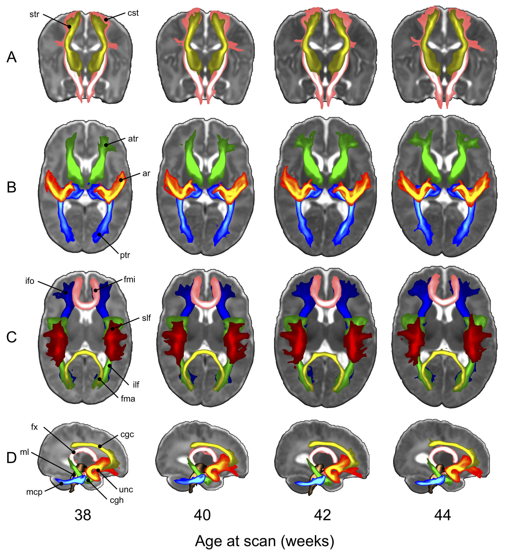 MRI scans of infant brains from the dHCP project