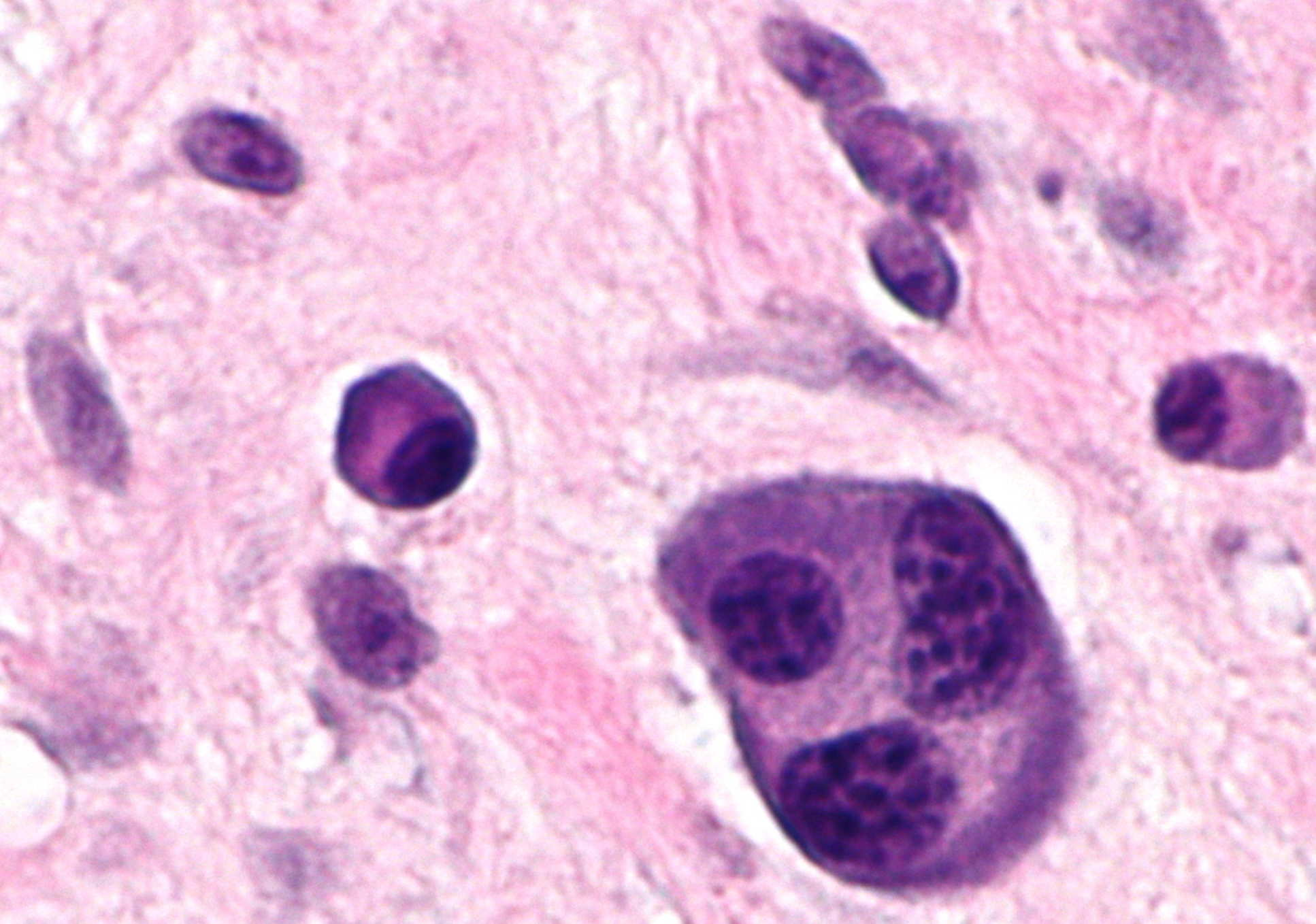 Breakthrough drug shows early promise for multiple myeloma