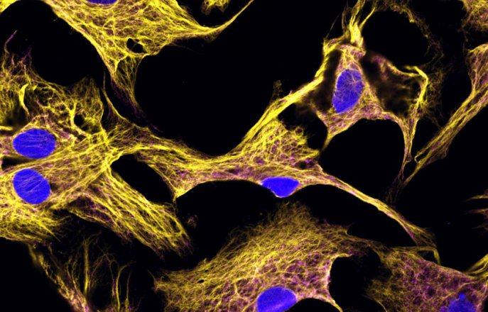 Fibroblasts stained with vimentin and HCN4