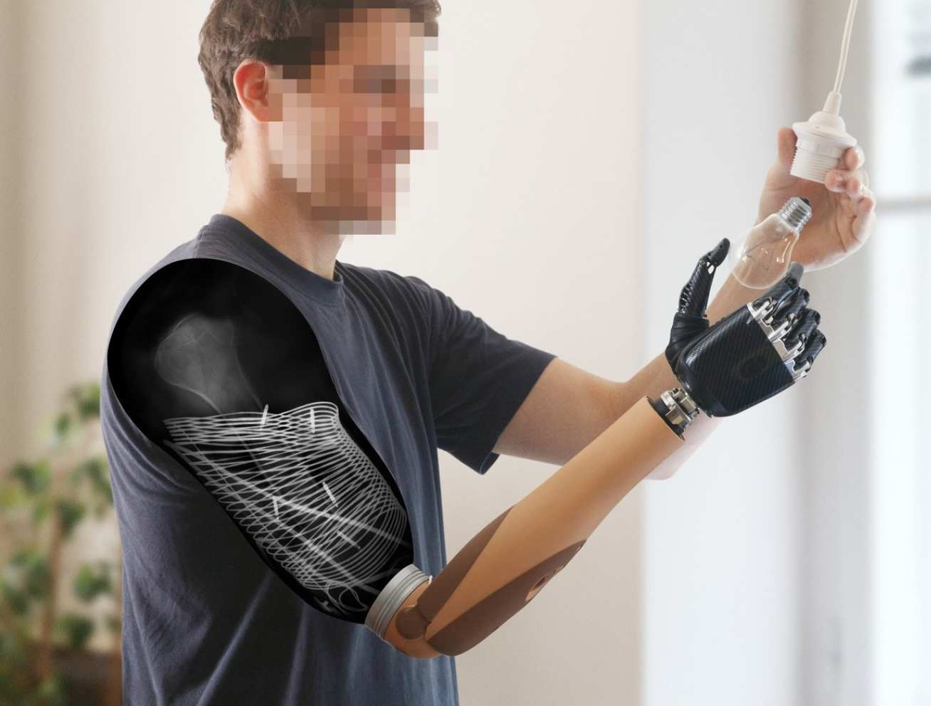 Photo of amputee using his prosthetic to fit a lightbulb. A cut-out shows the inner workings of the electrodes and nerve reinnervation