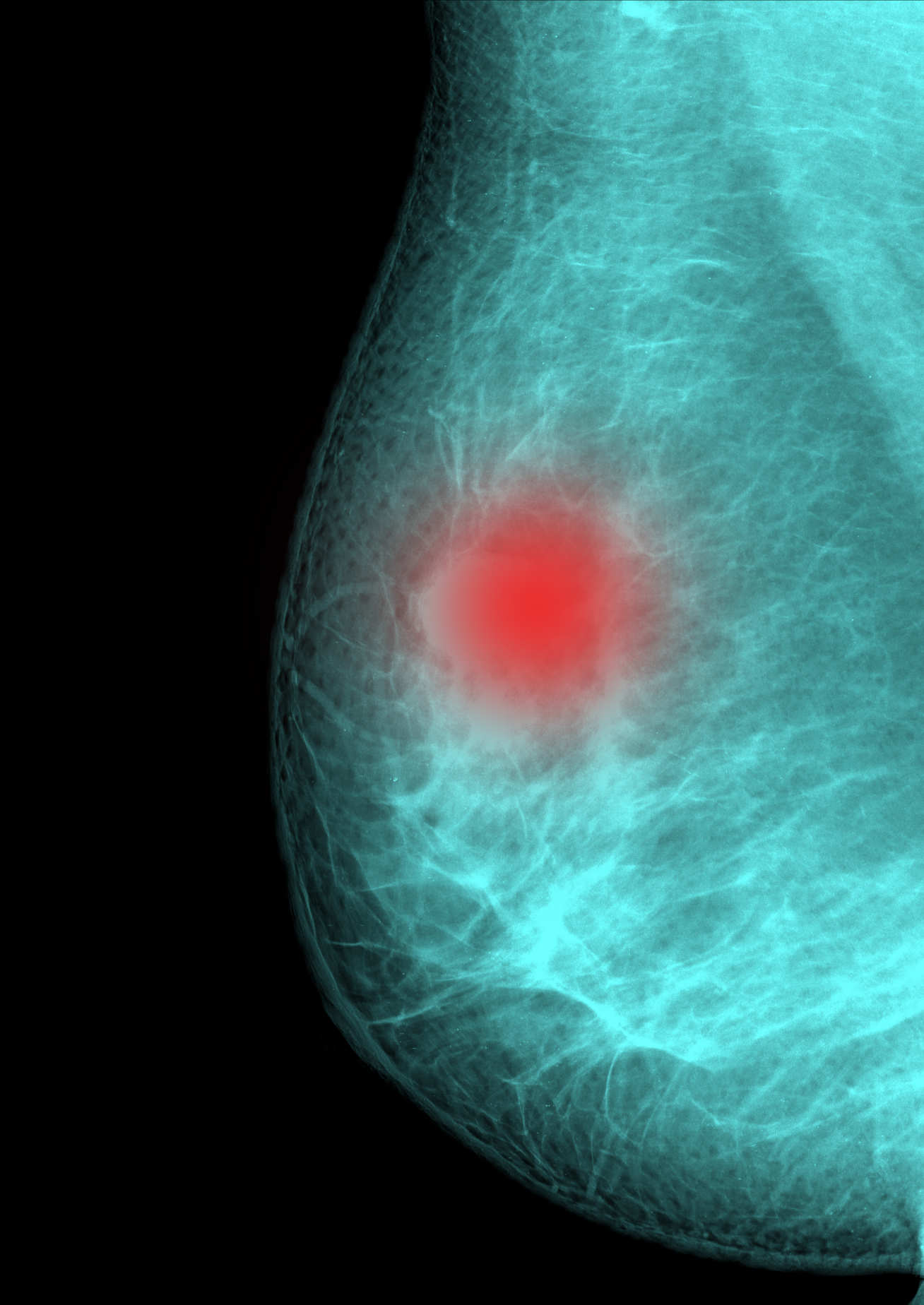 Up to one in five breast cancers are thought to be linked to faulty genes