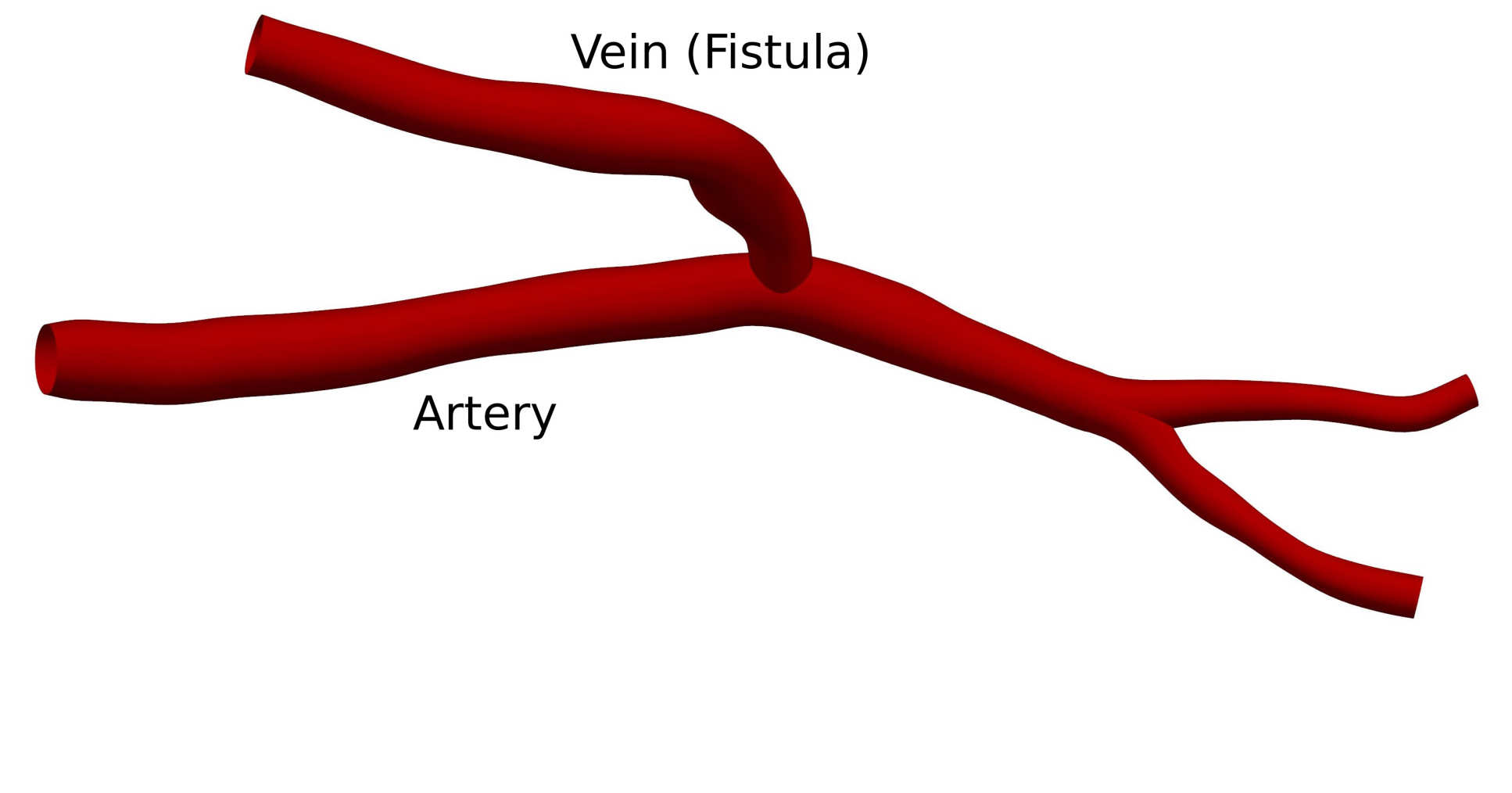 3D rendering of AVF with labels showing vein and artery