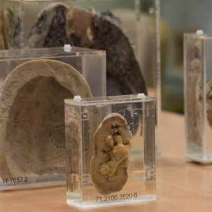Pathology museum specimens
