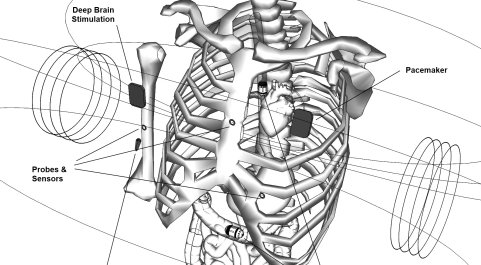 Application: biomedical devices