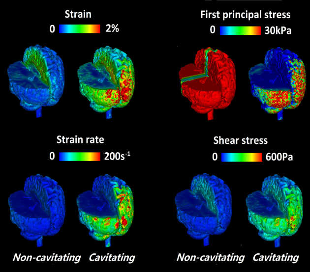 Modelling stresses in the brain in the moments following blast loading