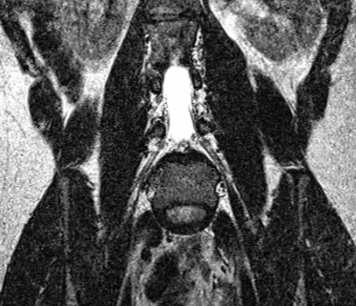 T2-weighted MRI coronal view of lumbar spine from a healthy subject.