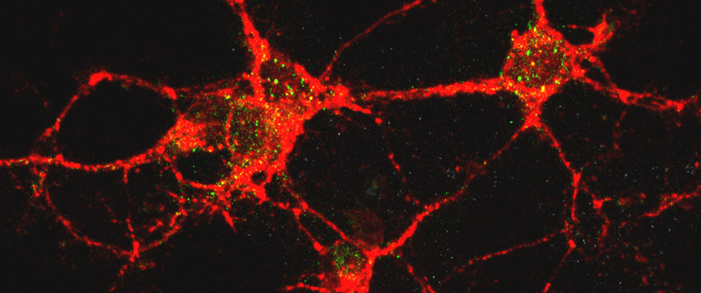 Neurons (red) invaded by toxic oligomers (green)