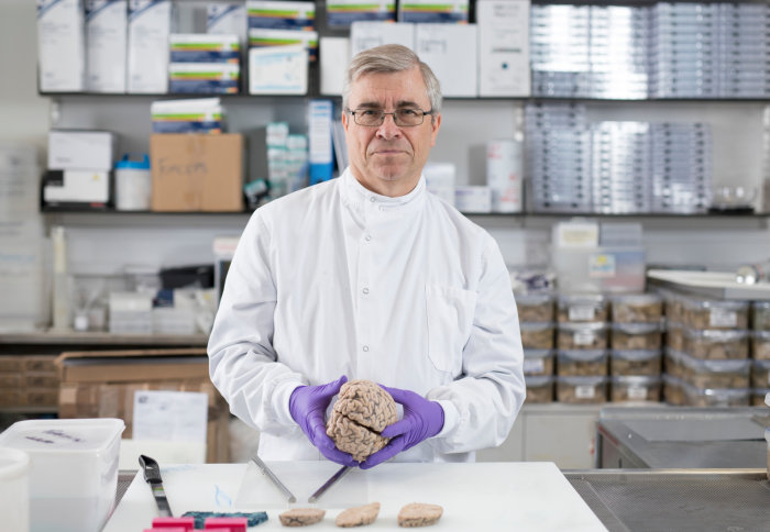 Professor Richard Reynolds holds a human brain in his hands