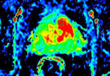 Researchers to investigate screening for prostate cancer using MRI