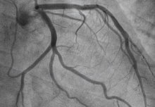 Angina patients who receive an arterial stent are more likely to be free from symptoms compared to those who receive a placebo treatment.