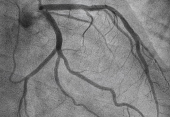 Arterial stents help angina patients live symptom free compared with placebo