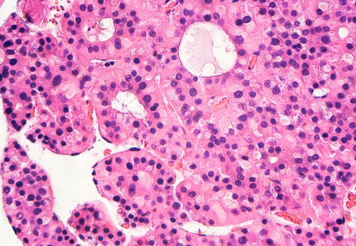 Close up of liver cells with hepatocellular carcinoma (HCC)