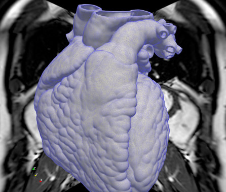 Imperial and Bayer to accelerate drug discovery for heart conditions using AI