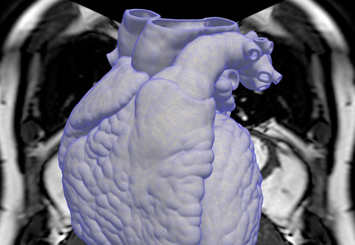 A 3D scan of a human heart