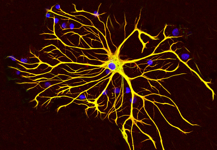A rat astrocyte: A microscopic image of a star-shaped nerve cell with multiple branches