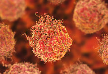 Imperial researchers awarded £1.3 million to fight prostate cancer