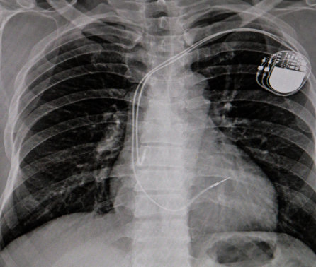 AI can improve X-ray identification of pacemakers in emergencies