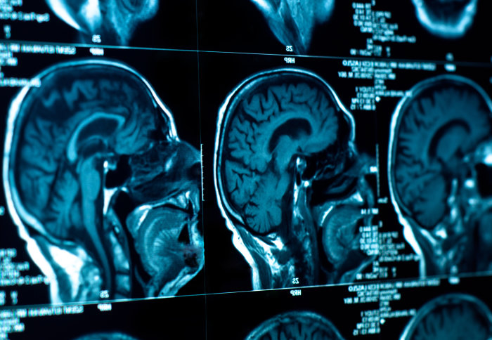 Tumour-targeting viruses hold hope for incurable brain cancers