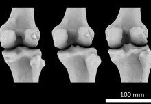 Mystery arthritis-linked knee bone three times more common than 100 years ago