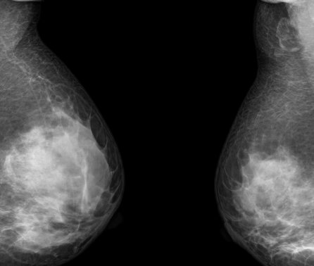Breast cancer blood test could help to spot relapse earlier