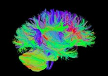 Diffusion tensor imaging illustrates white matter connections in the brain