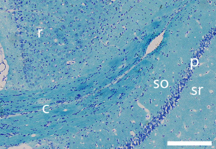 Histological image showing that Xenon treatment prevented long-term degeneration of nerve fibres in the corpus callosum