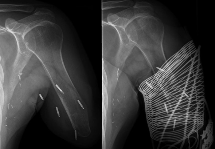 X-ray showing electrodes implanted in remaining arm in amputee patient