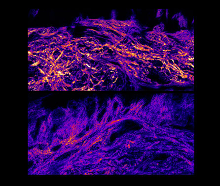 Q&A: How skin cells from foot soles could help relieve amputees of stump injury