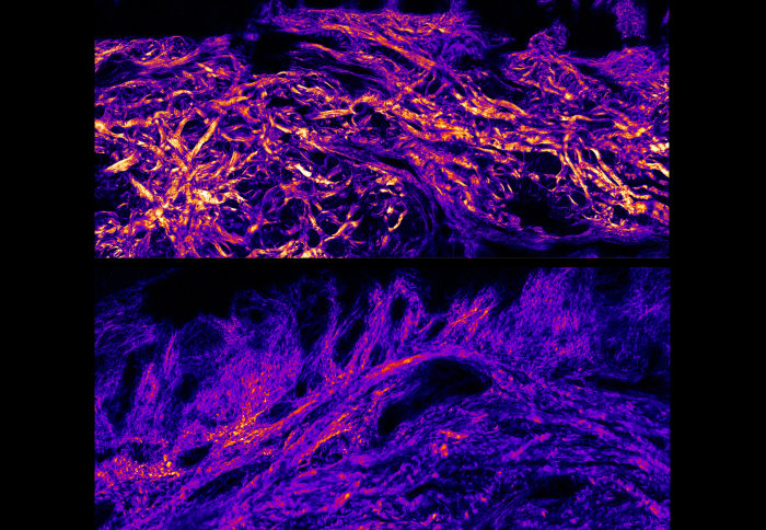 Top and bottom comparison images showing that collagen bundles and collagen fibres in foot sole (plantar) skin are much thicker than body skin.