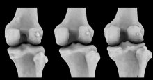 Scan of three knees, each showing different fabella sizes