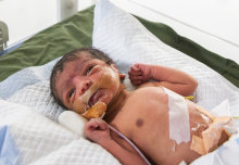 World's largest study on babies with brain injuries starts in India