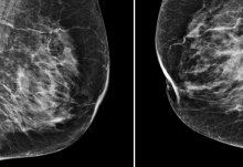 Artificial intelligence could help to spot breast cancer