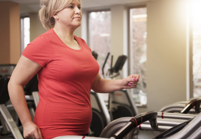 An overweight woman exercises on a treadmill