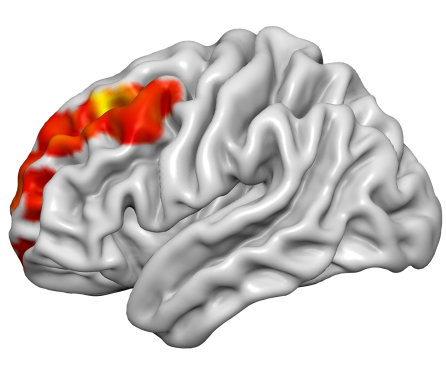Kisspeptin hormone injection can boost brain activity associated with attraction