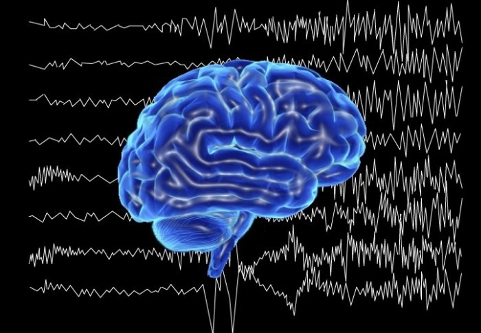 Image of a brain and EEG waves