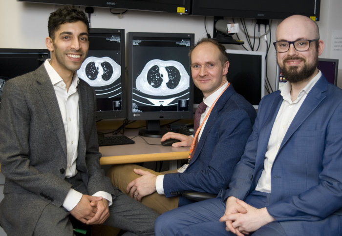 Investigators Sumeet Hindocha, Richard Lee, Benjamin Hunter sit with a lung CT scan