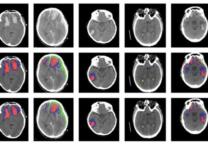 Image of brain scans processed by the machine learning algorithm