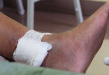 Early treatment for leg ulcers leads to better outcomes for patients