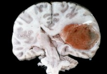 Direction of needle penetration in brain affects drug uptake, finds new study